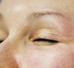 PRGF injekcijos, stabdančios laiką ir grąžinančios odos skaistumą